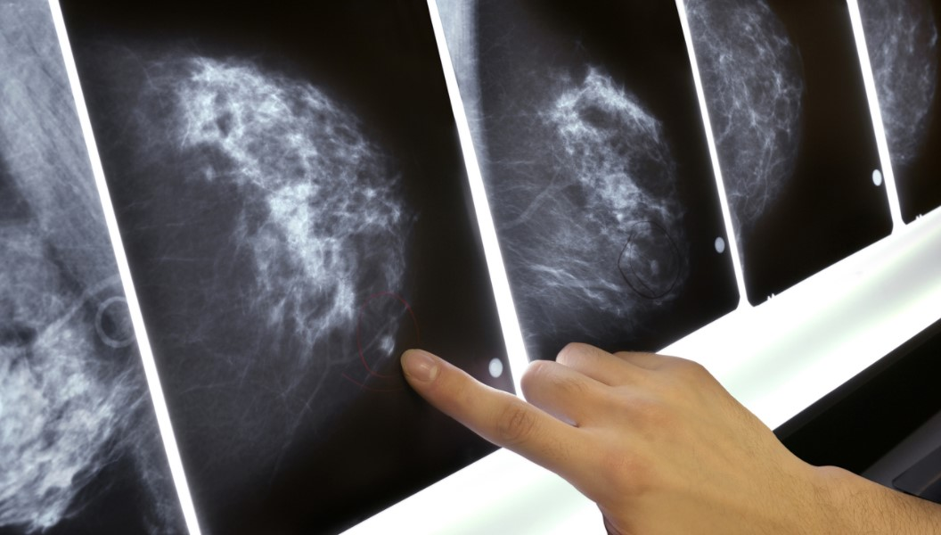 Called Back for More Mammography Imaging