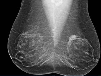 Interval Breast Cancers